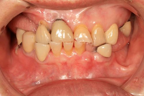 West Mill Smiles Gum Disease 2
